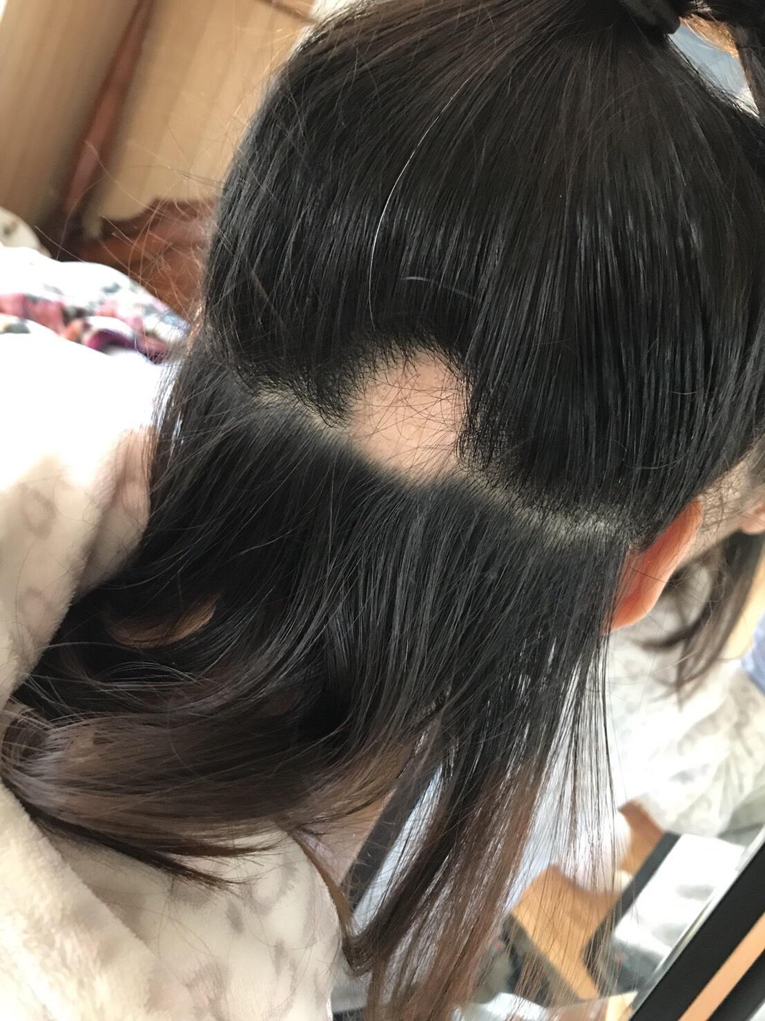 脱毛 症 円形 円形脱毛症について